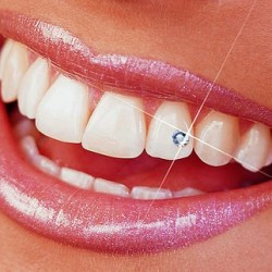 strasuri bijuterii dentare suceava