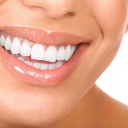 Implant dentar Suceava