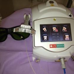 albire dinti cu laser suceava