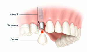 implant dentar suceava, bacau